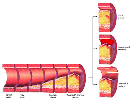 Plaque formation in atherosclerosis
